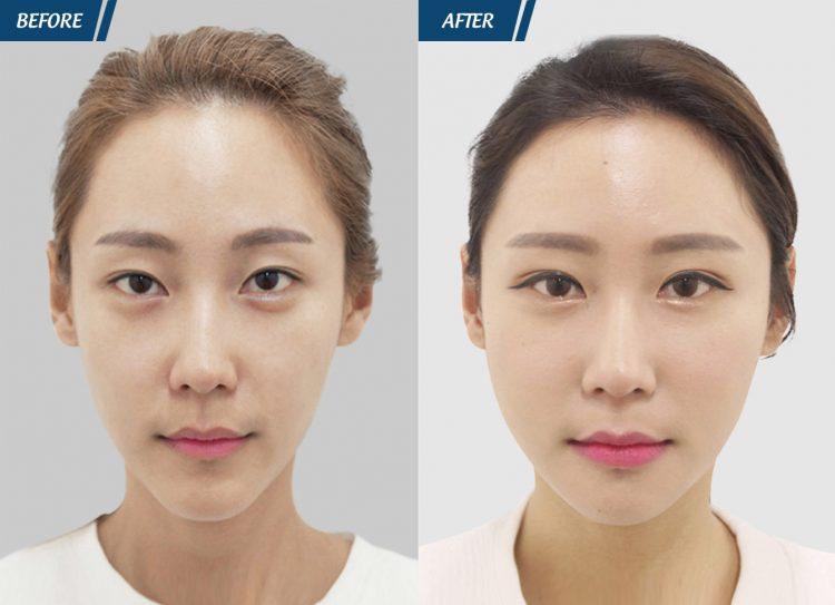 trước sau cấy mỡ mặt